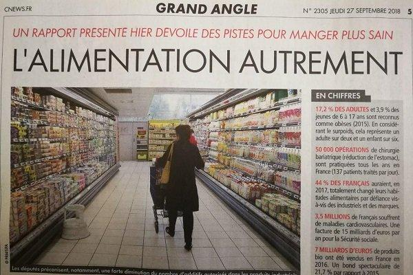 روزانه 137 فرانسوی معده خودشان را کوچک می نمایند!
