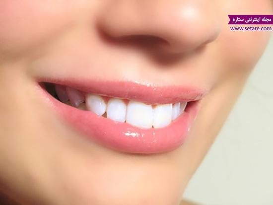 قیمت ایمپلنت دندان (کاشت دندان)