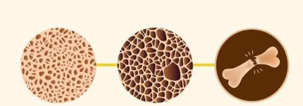 عوامل موثر بر پوکی استخوان و منابع غذایی کلسیم و فسفر