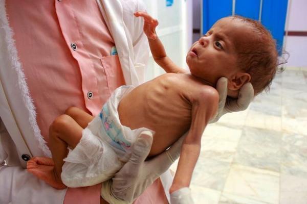 نسل آینده یمنی ها در حال ناپدید شدن است
